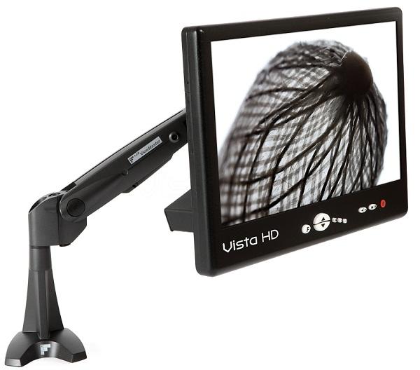 Vista HD nagyfelbontású vizsgálórendszer